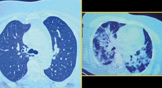 İlaç kullanmayı reddeden koronavirüs hastasının röntgeni ağızları açık bıraktı